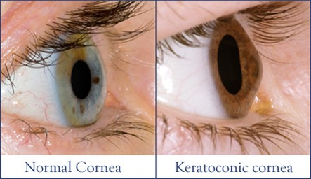 keratoconus surgery