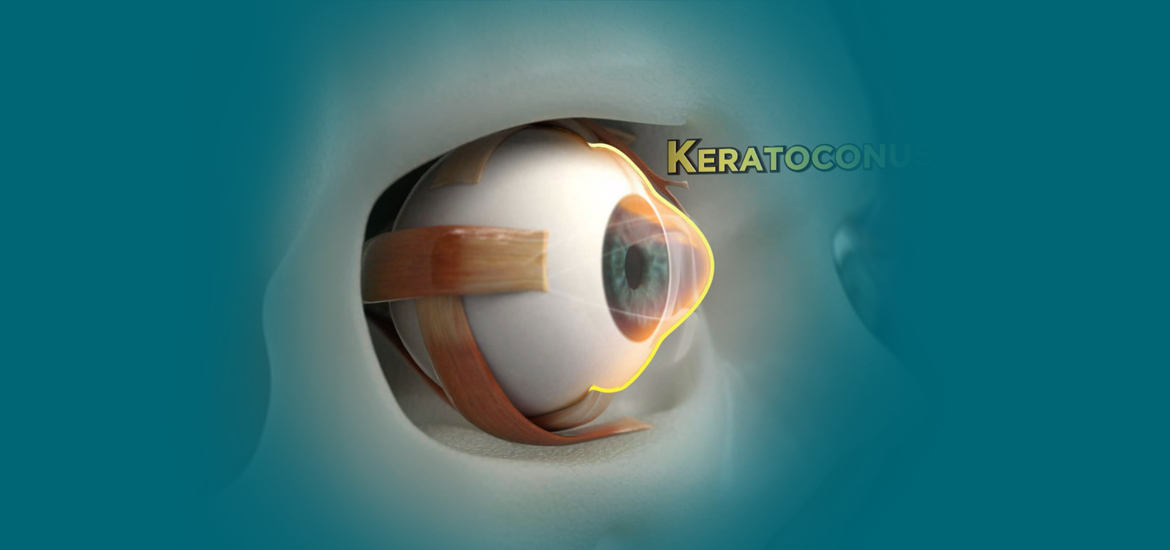 keratoconus-surgery